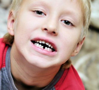 childs broken tooth, chipped tooth,