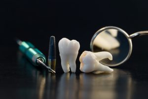 Real Human Wisdom teeth, titanium implant and Dental instruments