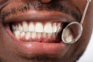 Gum Disease is preventable